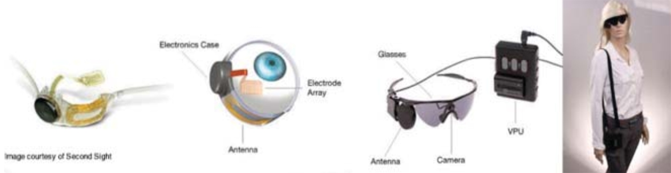 Clinical Results in Visual Prosthesis and Current Status